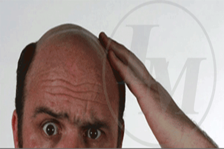 Image of a balding man
